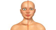 甲状腺眼症(バセドウ病)とは?原因や治し方などを解説
