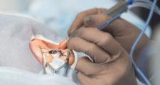目の手術を受ける人