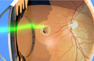 網膜裂け目の周りのレーザー光凝固