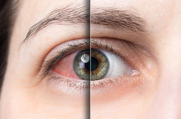 治療前と治療後の赤目