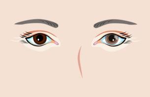 目がかすんでいる人の目