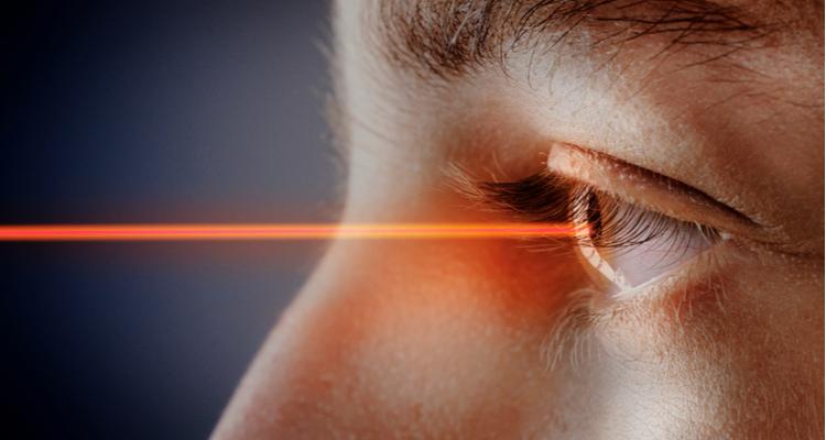目のレーザー