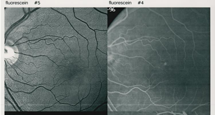 中心性漿液性脈絡網膜症