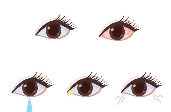 充血した目のイラスト