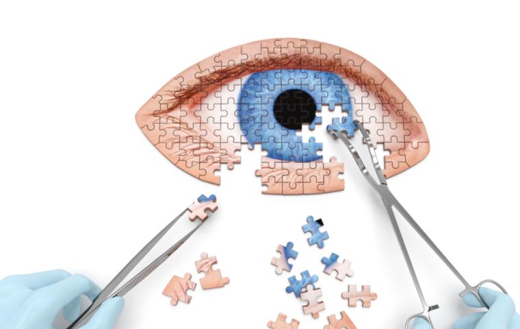 目のパズル