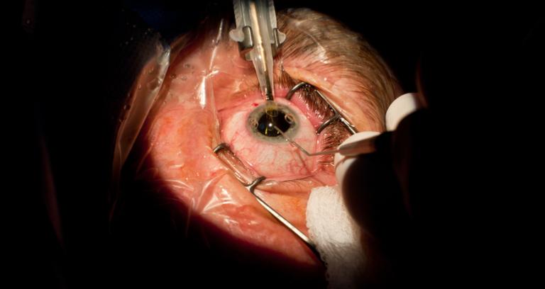 手術される目
