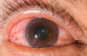 血管新生緑内障