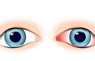 健康な目と不健康な眼